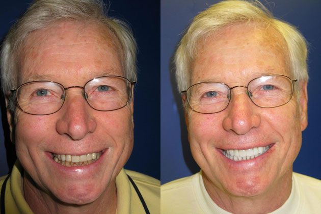 Cosmetic Porcelain Veneers: Replacing low quality Veneers with EMAX